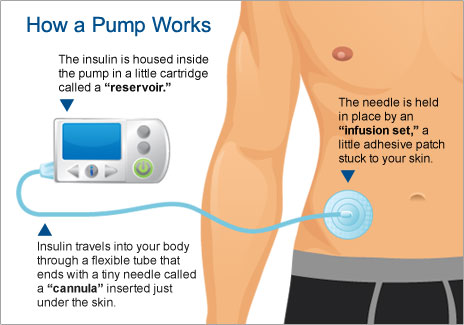 Insulin Pump Now The Power To Control Diabetes Is In